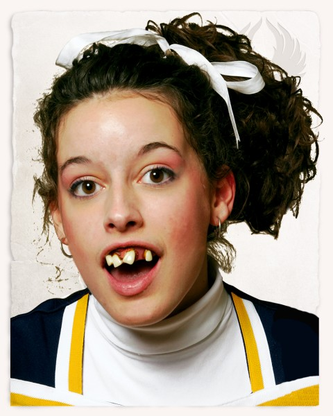 Cheerleader teeth